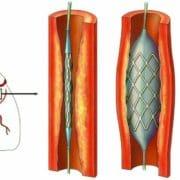 Brilique 90mg – Informații utile